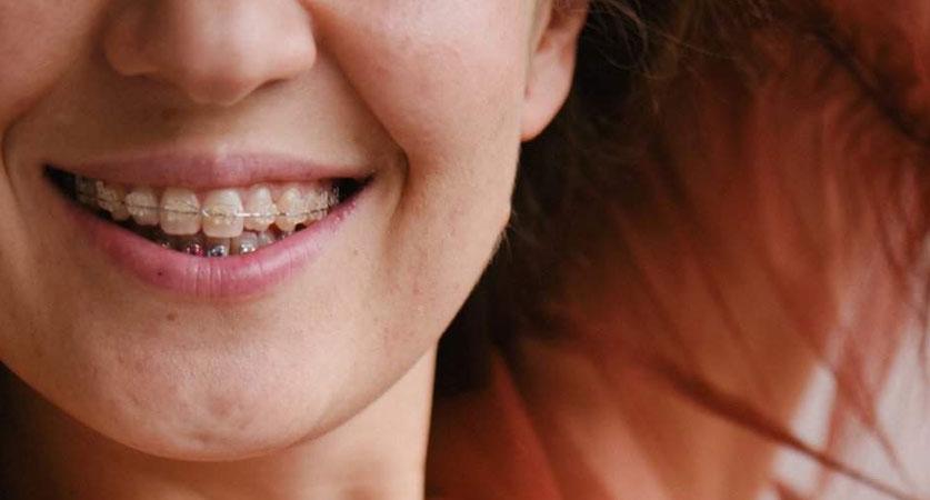 teeth straightening