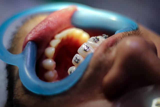 affordable braces