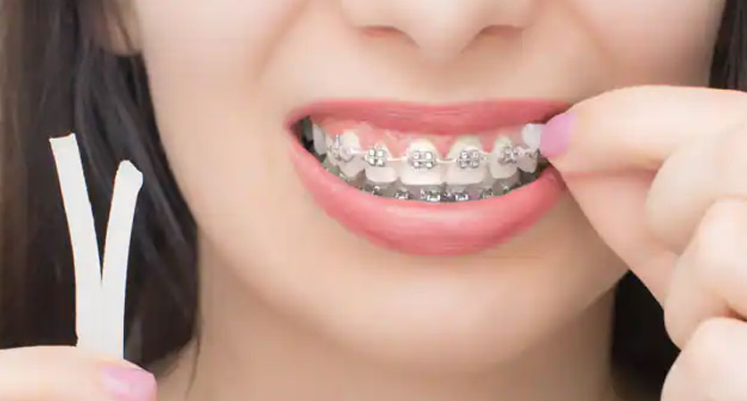 getting braces